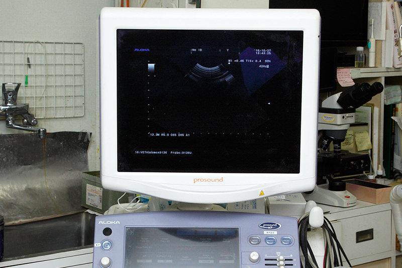 超音波診断装置(超音波エコー)